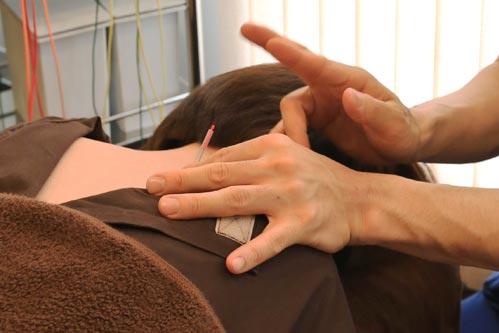 筋肉の反応点に鍼