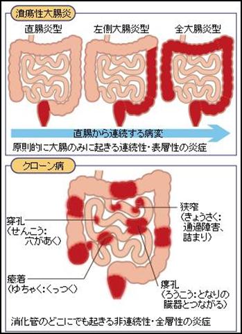 炎 ストレス 胃腸